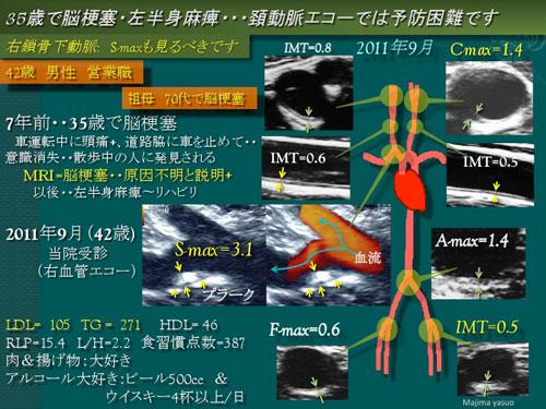 エコー 頸 動脈